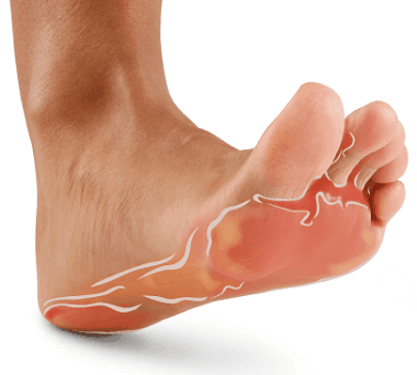 Are You Genetically Inclined to Get Athlete's Foot?